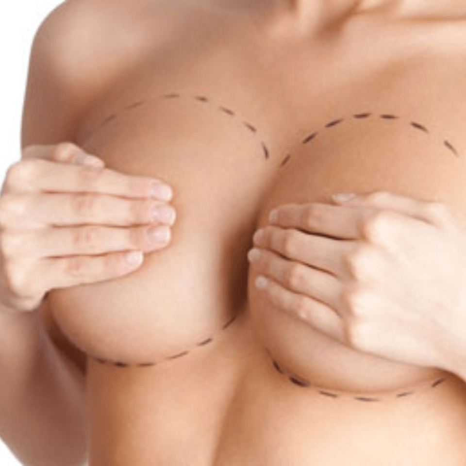 2 breast lift mastopexy tn